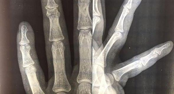 اطباء القطاع العام بسوس يحتجون على الاعتداء الشنيع الدي تعرض له طبيب المركز الصحي لأنزي